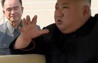 Cổ tay ông Kim Jong-un xuất hiện 'vết đỏ bí ẩn'